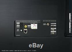 Lg Oled55b9 55 Pouces 4k Ultra Smart Hd Wifi Oled Tv Noir